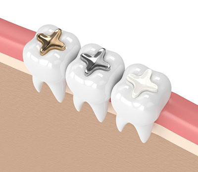 Dental filling White filling Gold filling Silver filling