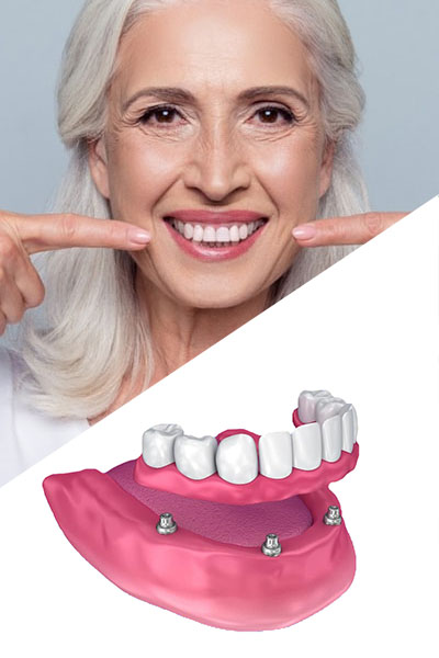 Mid-age women with dental implants