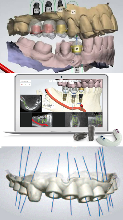 3D non-invasive dental implants