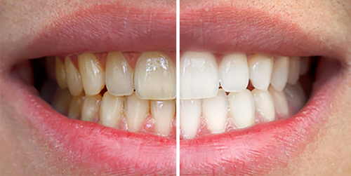 Male Teeth Whitening Before & After Shenas Dental