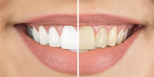 Female Teeth Whitening Before & After Shenas Dental
