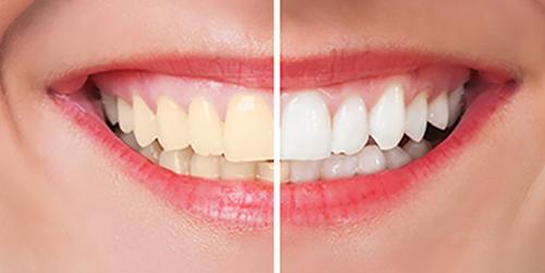 Teeth Whitening Before & After Shenas Dental