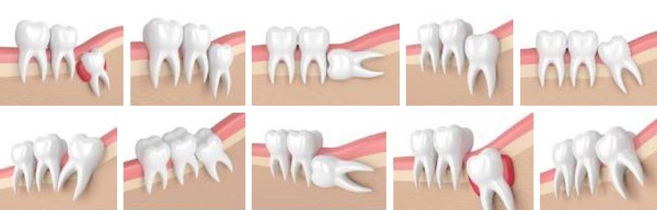 Wisdom tooth types